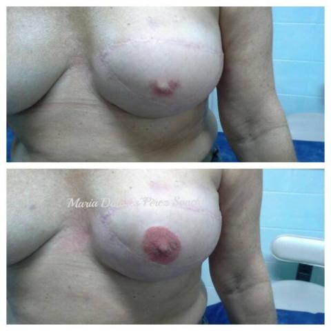 Medicinska mikropigmentacija Areole